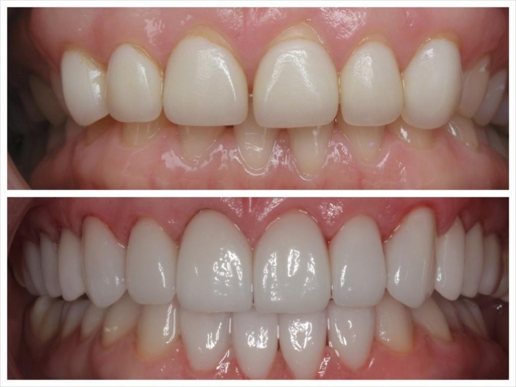 Porcelain Veneers in Glendale Verdugo Hills Dental GroupVeneers Cost Per Tooth