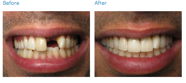 Before and After - Dental Implant Restoration