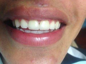 Porcelain Dental Crowns - After