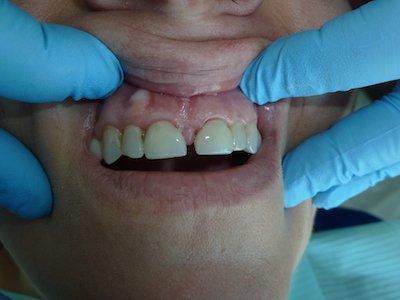 Dental Crown Procedure - After