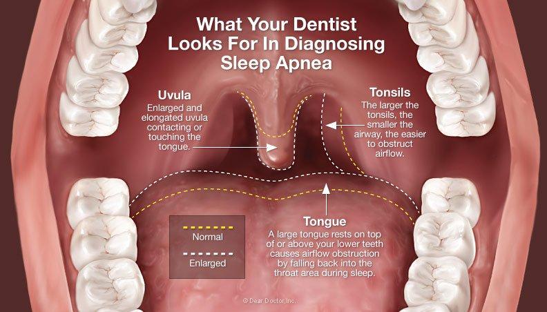 Dentist diagnosing sleep apnea